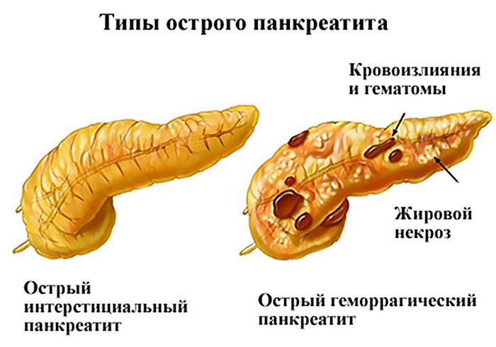 виды острого панкреатита