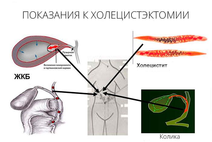 показание к удалению желчного