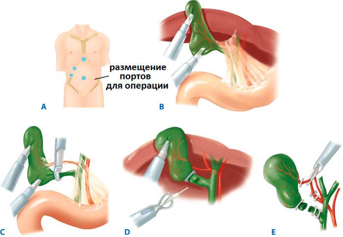 этапы лапароскопии