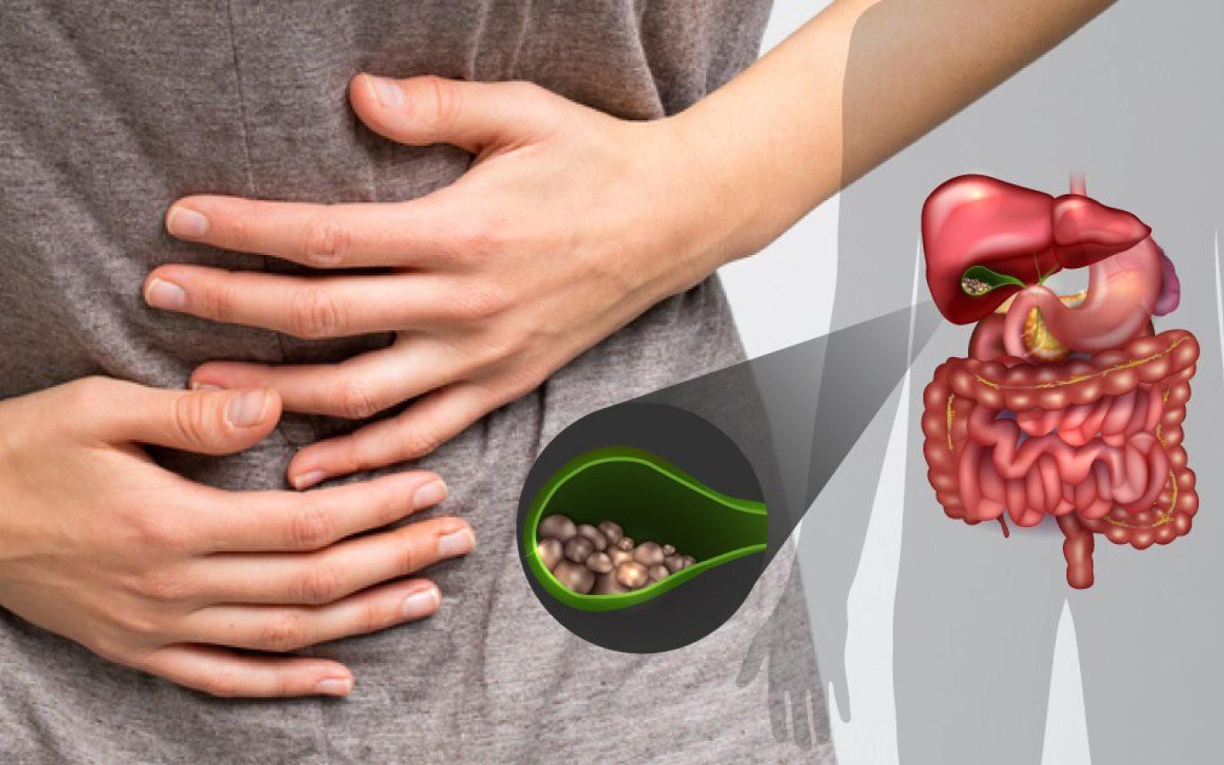 Характерные симптомы желчекаменной болезни