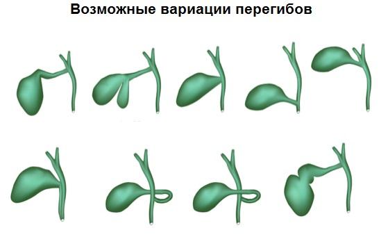 Все возможные варианты изгибов и деформаций желчного