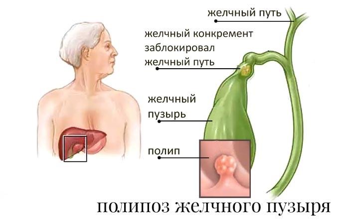 Схема образования полипов желчного пузыря