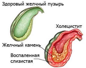 Схема здорового и воспаленного органов