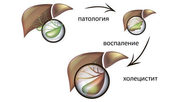 Развитие воспаления желчного пузыря