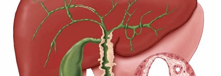 Флегмона как осложнение воспаления