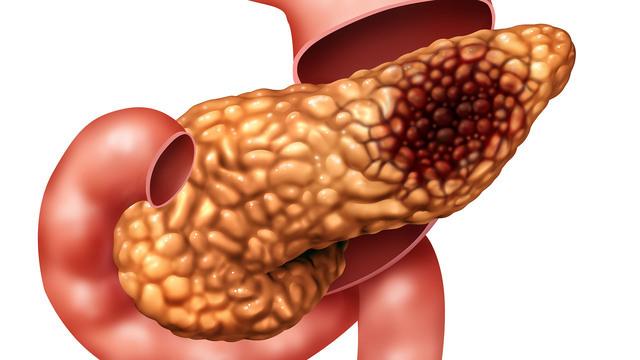 Изменения при хроническом панкреатите