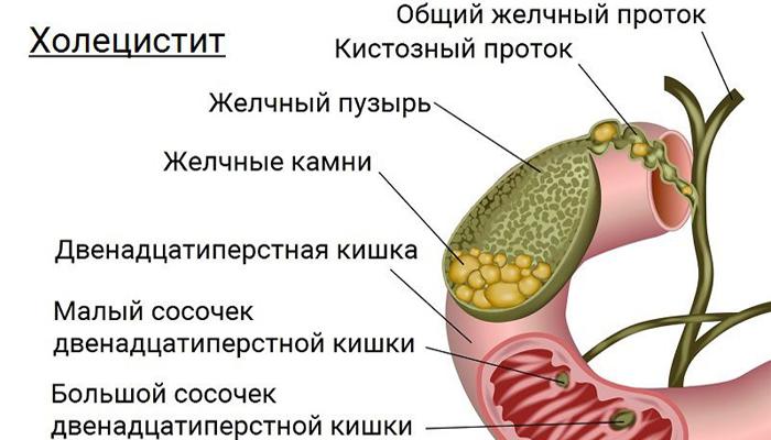 Анатомия холецистита