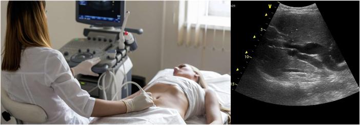 Процесс ультразвукового исследования