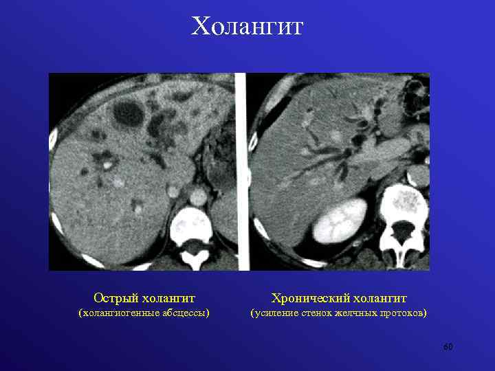 Острый и хронический холангит