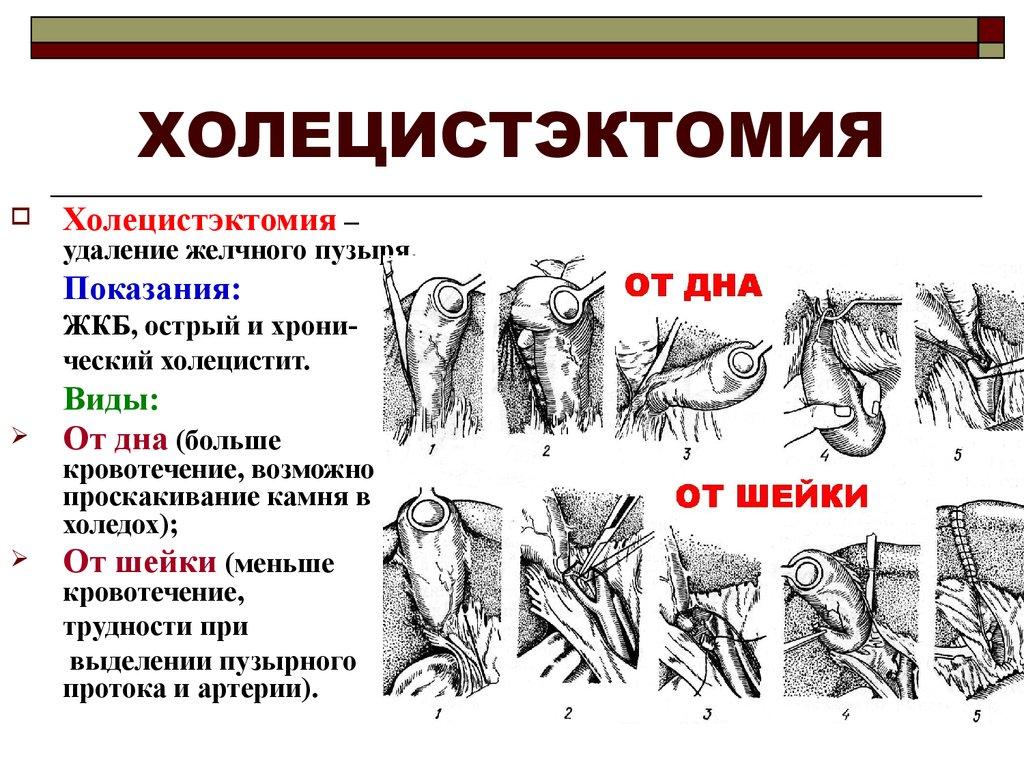 Определение холецистэктомии
