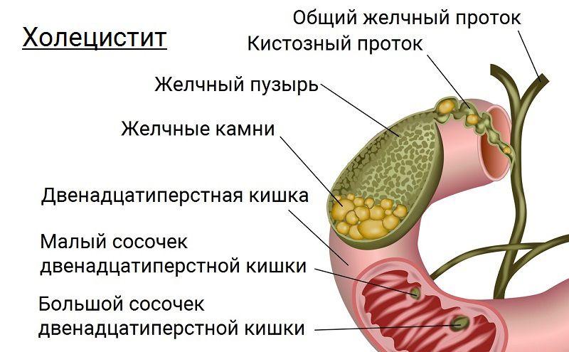 Желчный пузырь холецистит