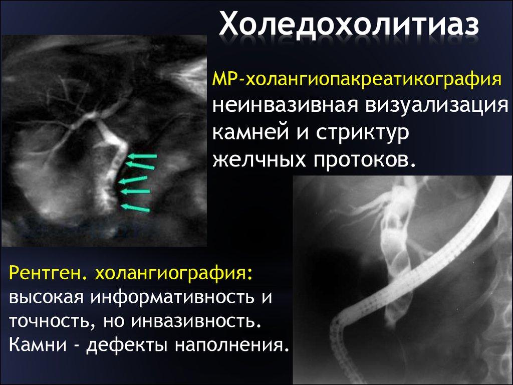 Определение и анатомия холедохолитиаза