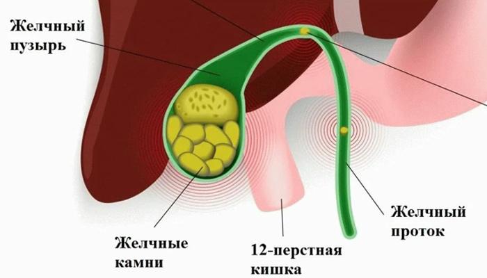 Желчекаменная болезнь - схема