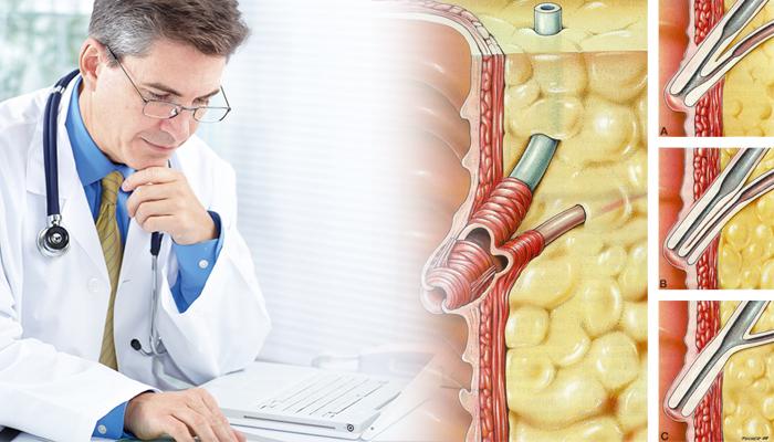 Консервативная терапия при дисфункции сфинктера Одди