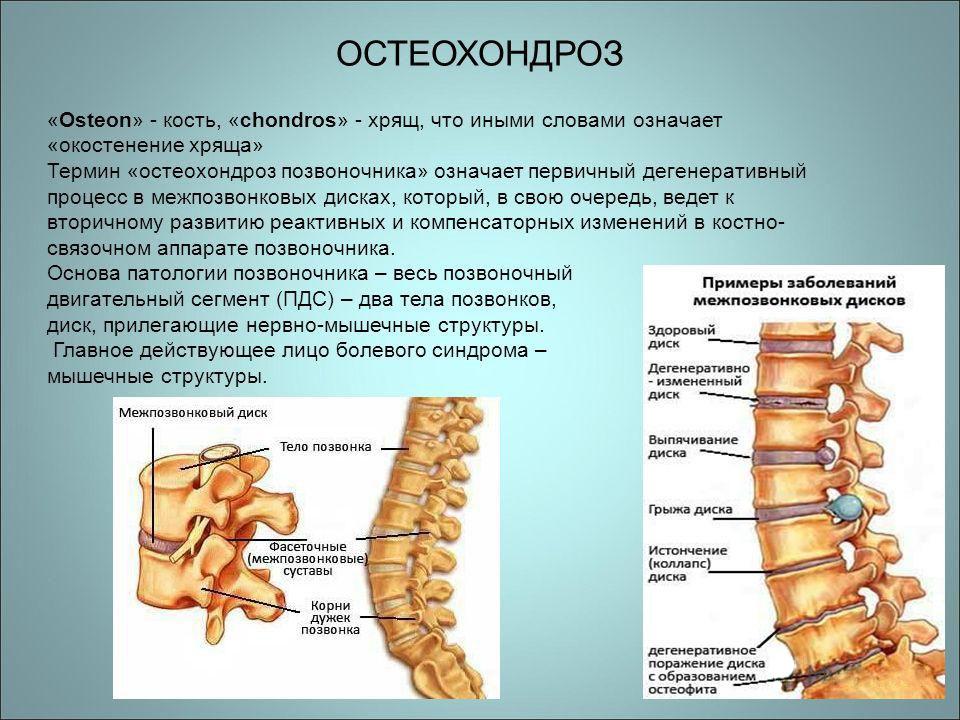 Определение остеохондроза позвоночника