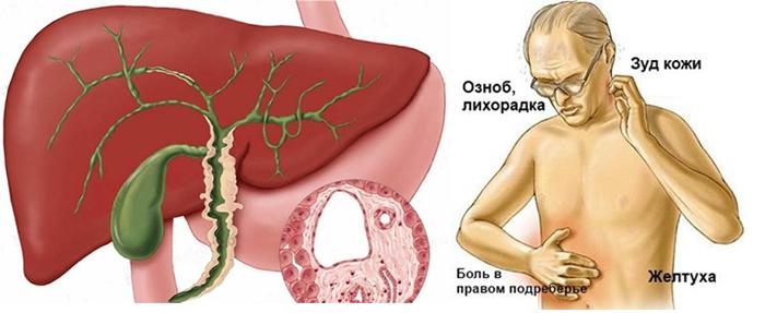 Клиническая картина острой формы холангита