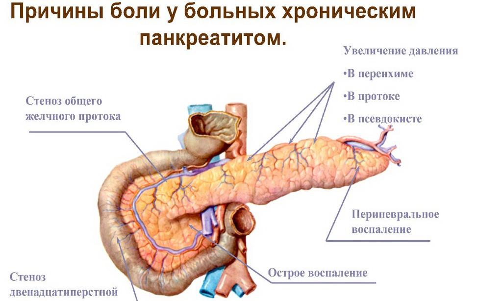 Хронический панкреатит - причины боли