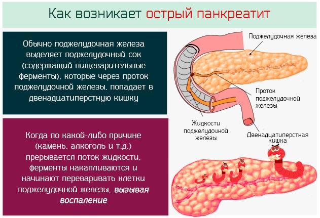 Как возникает острый панкреатит