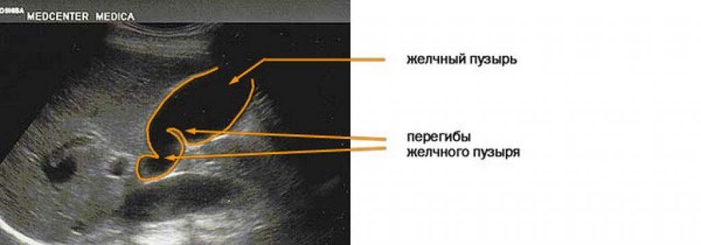 Загиб желчного пузыря на узи