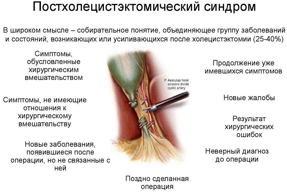 Определение постхолецистэктомического синдрома