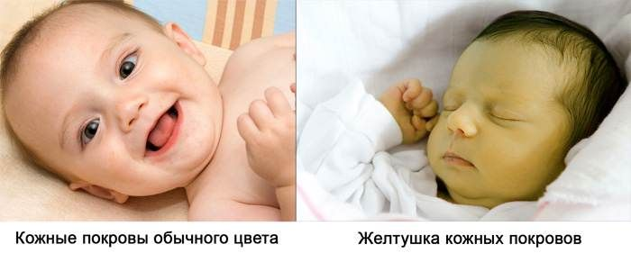 Желтизна у новорожденного