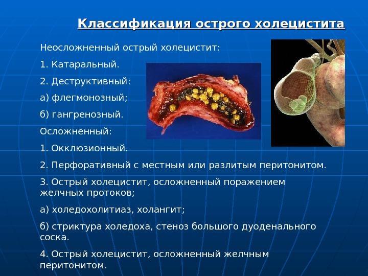Острый холецистит классификация