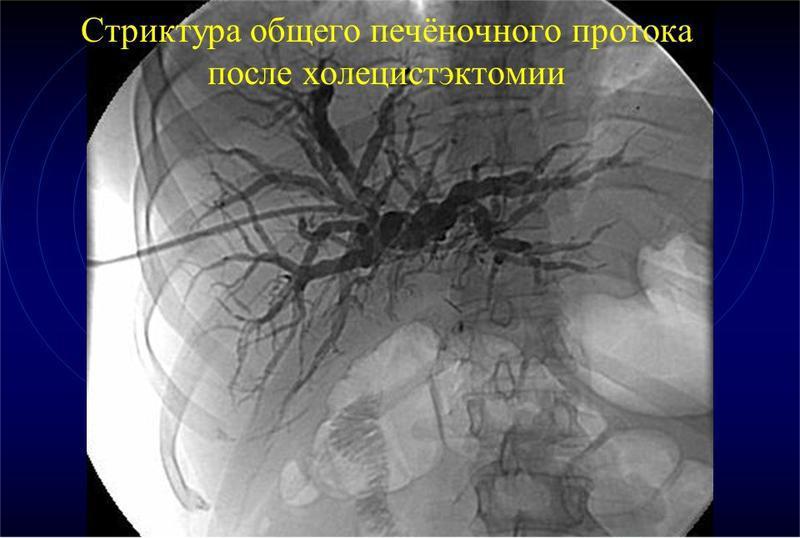 Рентген после удаления желчного пузыря