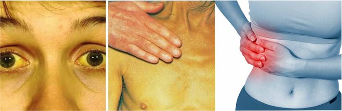 Желтушность кожи и склер, боль в правом подреберье