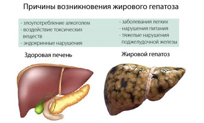 Причины возникновения жирового гепатоза