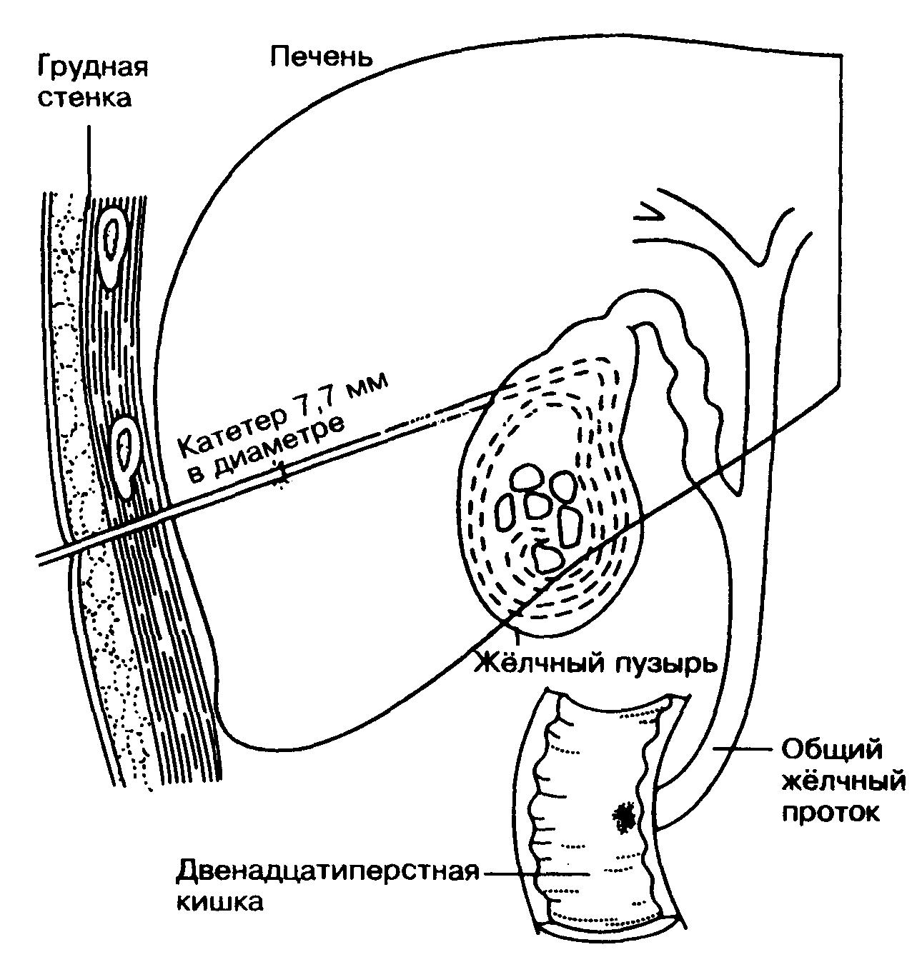 Схема проведения чрескожного литолиза