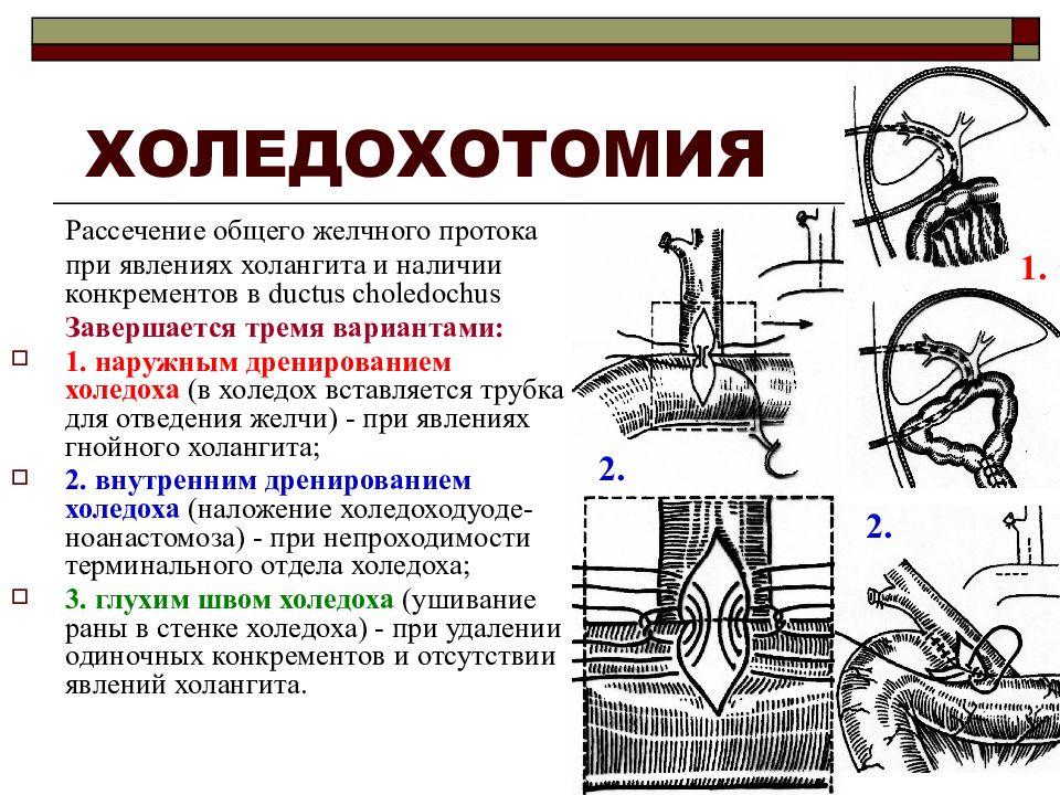 Холедохотомия - анатомия и определение