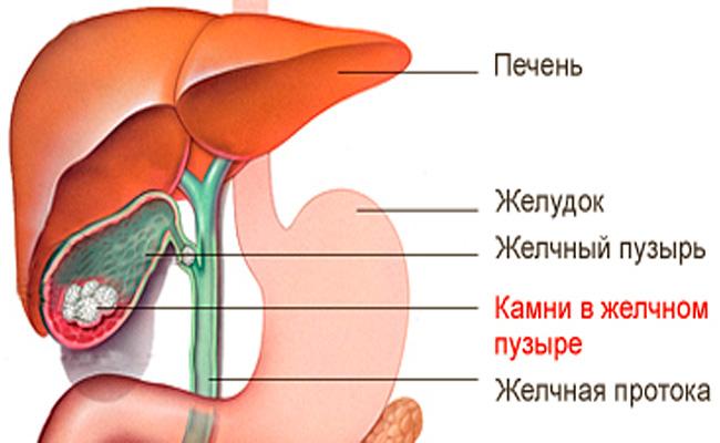 Анатомия желчнокаменной болезни