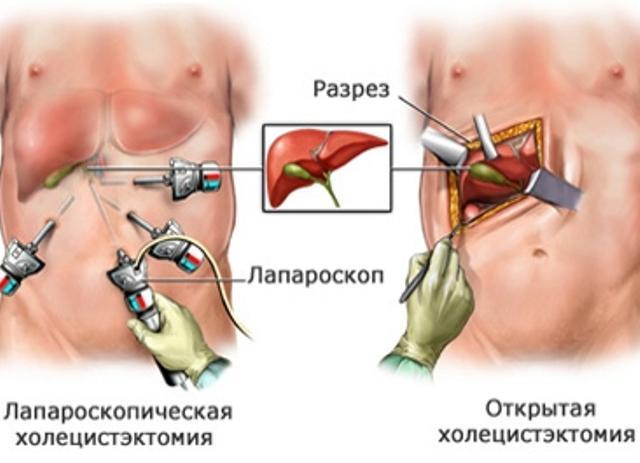Анатомия и виды операции по удалению желчного пузыря