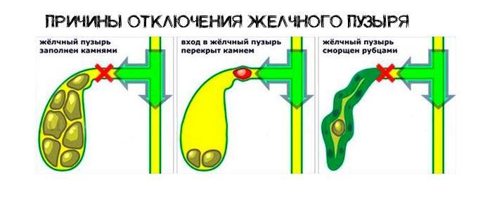 Нерабочий желчный пузырь - анатомия