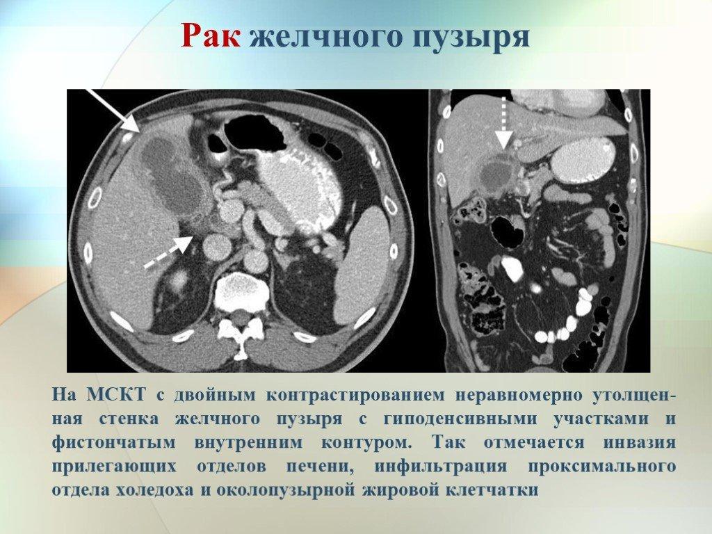 УЗИ опухоли желчного пузыря