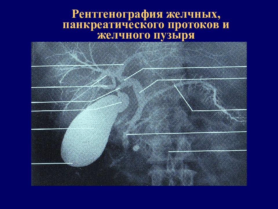 Рентгенография желчных путей и пузыря