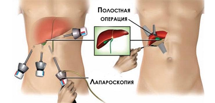 Анатомия - удаление желчного пузыря