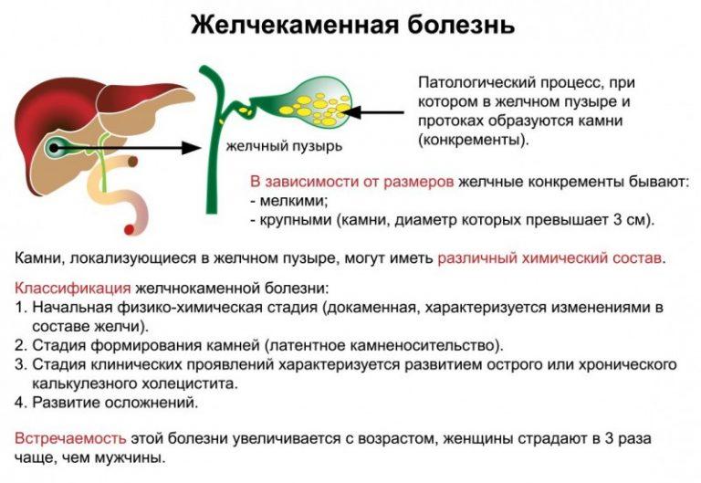 ЖКБ - анатомия и определение болезни